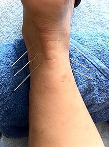 acupuncture 1211182  340 223x300 - Akupunktur